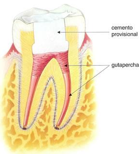 como-es-una-endodoncia-6