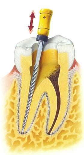 como-es-una-endodoncia