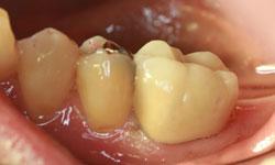 reconstruccion endodoncias madrid