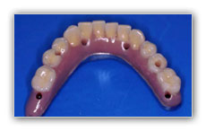 implantes madrid