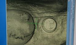escaner implante por ordenador