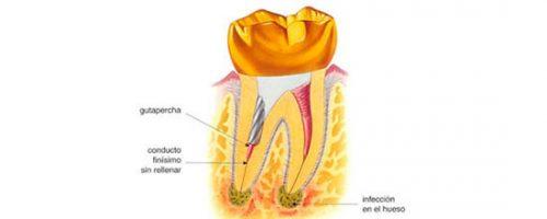 endodoncia-compliacaciones-5