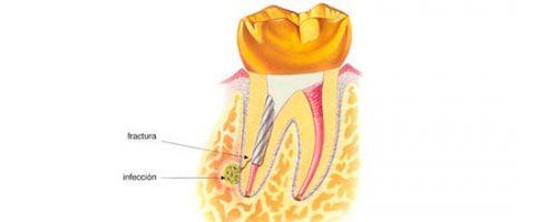 endodoncia-compliacaciones-6