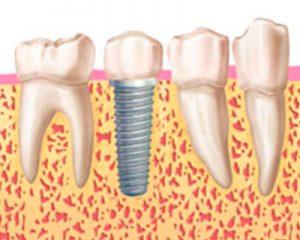 implantes-carga-inmediata-4
