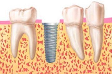implantes-sin-cirugia-paso3