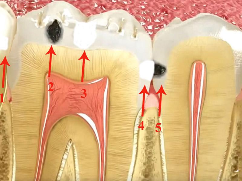 Empaste dental según la localización