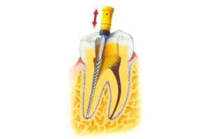 fractura de instrumento en una endodoncia