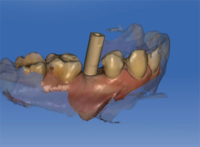 escaner intraoral de implantes dentales