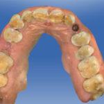 scaner intraoral dental