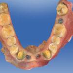 scaner dental intraoral