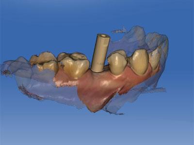 scaner intraoral madrid