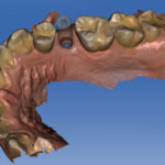 scaner dental