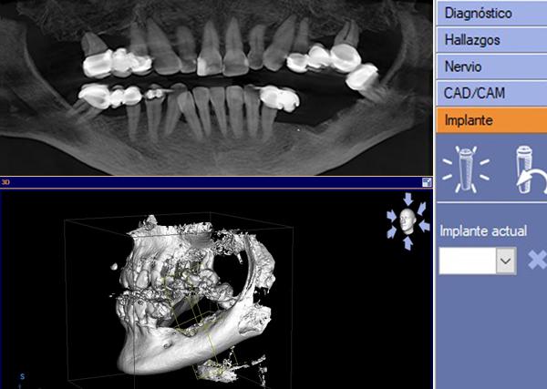 Especialista en implantes dentales en barrio salamanca Madrid